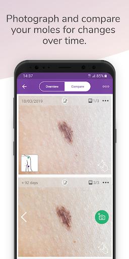 Miiskin - Melanoma Skin Cancer